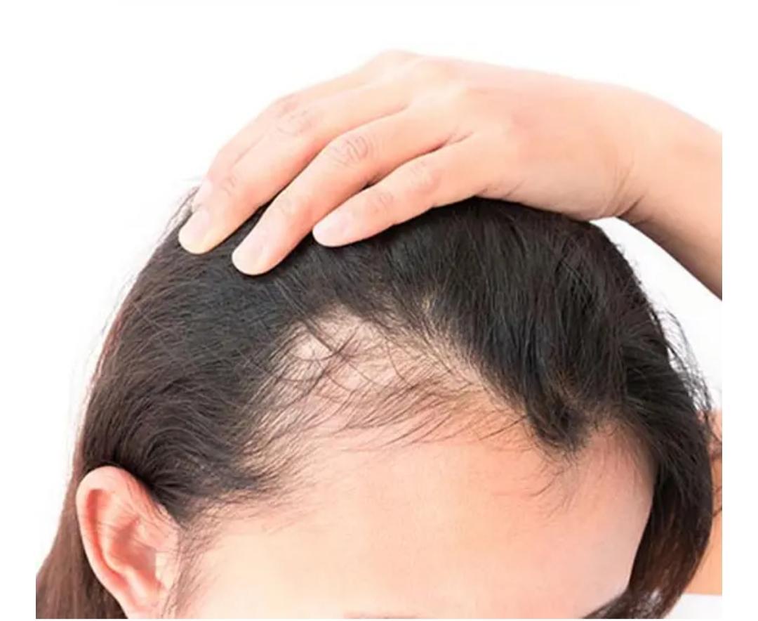 Saúde do cabelo x Dietas
