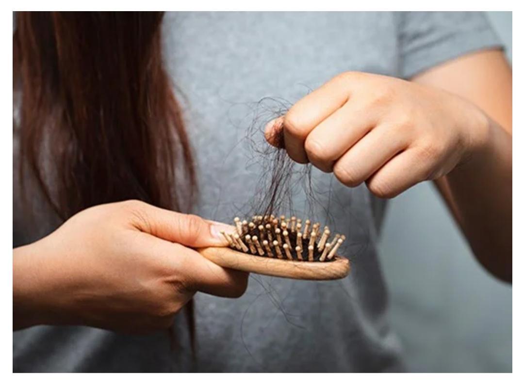 Queda de cabelo pós COVID 19