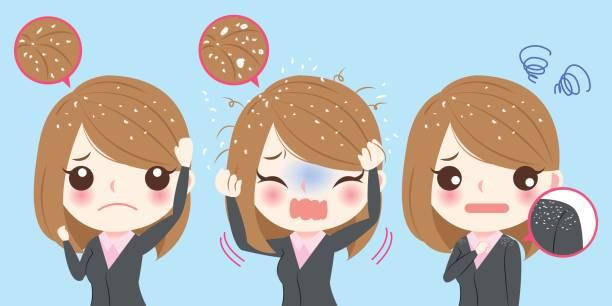 Casquinhas no couro cabeludo: Saiba o que causa e como amenizar o problema