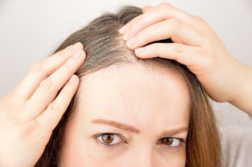 Quais as doenças do couro cabeludo?
